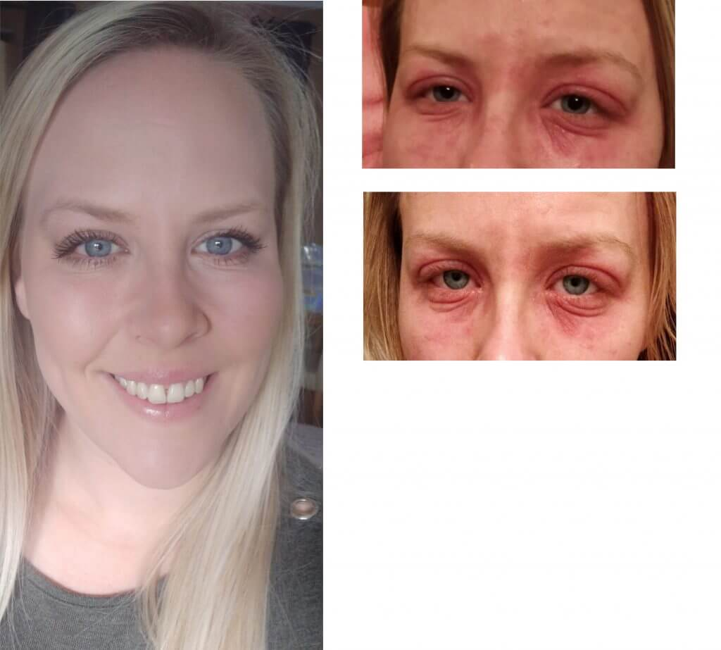 nicole eyes before and after